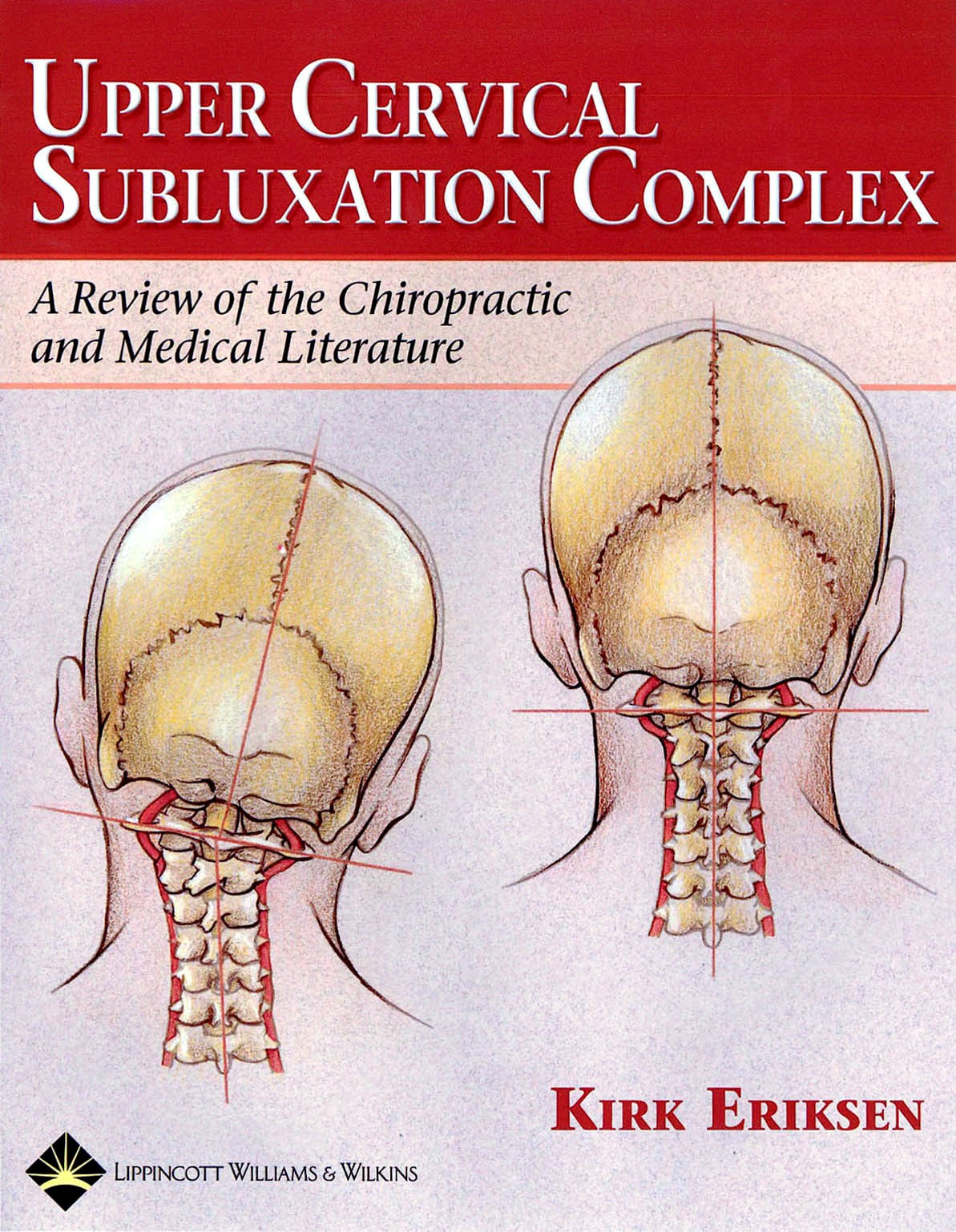 Upper Cervical Subluxation Complex textbook cover
